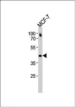 Western blot analysis of MCF-7 cell line lysates (35ug/lane) using ESR2 antibody(C-term)