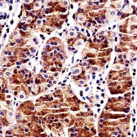 Immunohistochemical analysis of formalin-fixed paraffin embedded human stomach tissue using RBPJ antibody (N-term)