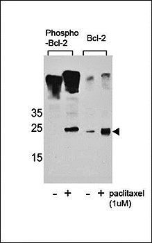 Western blot analysis of Jurkat cells using Phospho-bcl-2(S70) antibody