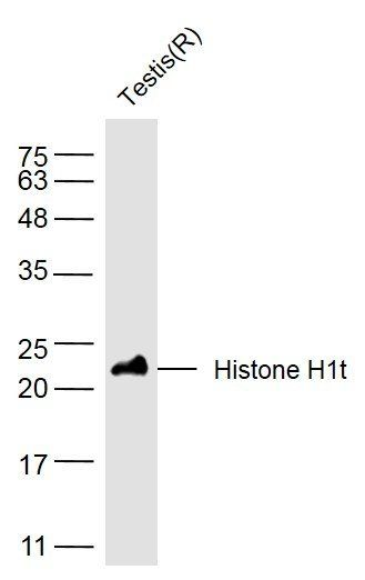 Western blot analysis of rat testis lysate using SLC38A2 antibody