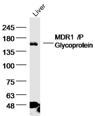 Western blot analysis of rat liver lysate using MDR1 antibody