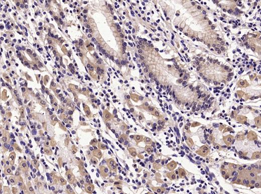 Immunohistochemical staining of Human stomach using E cadherin antibody