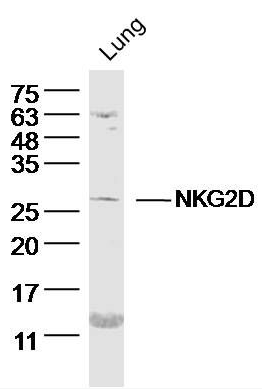 Western blot analysis of mouse lung lysate using NKG2D antibody