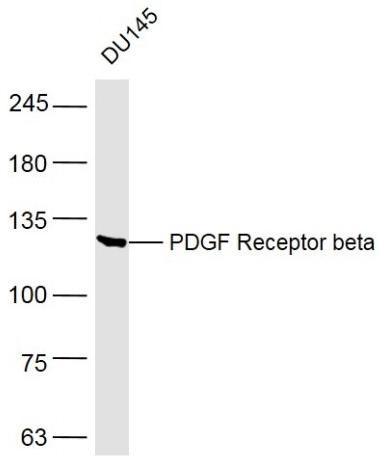 Western blot analysis of human DU145 cell lysate using PDGFR beta antibody