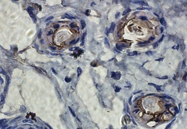 Immunohistochemical staining of paraffin embedded mouse skin tissue using TIMP1 antibody (primary antibody at 1:100)