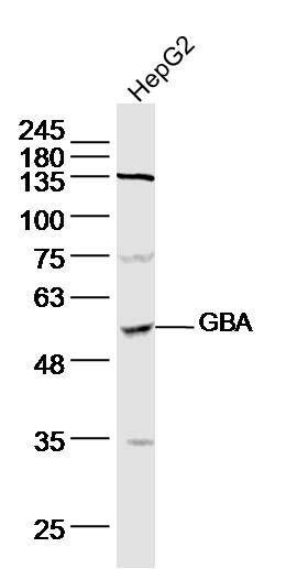 Western blot analysis of HepG2(Human) Cell Lysate using GBA antibody.