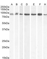 Western blot analysis of A431 (A), HEK293 (B), Jurkat (C), Daudi (D), HeLa (E) and Kelly (F) and KNRK (G) cell lysate using KPNB1 antibody.