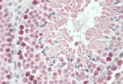 Immunohistochemical staining of Mouse Testis using Robo1 antibody