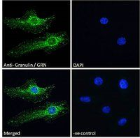 Immunofluorescence analysis of paraformaldehyde fixed HeLa cells using GRN antibody.