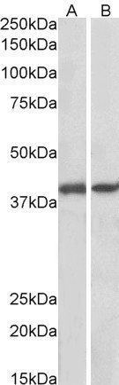 Western blot analysis of  staining of Pig Colon (A) and Pig Spleen (B) lysates (35µg protein in RIPA buffer) using GNAQ antibody.