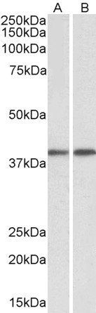 Western blot analysis of  staining of Peripheral Blood Lymphocytes lysate using GNAQ antibody.