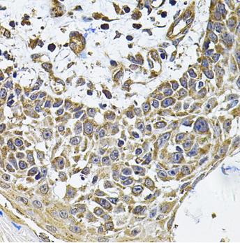 Immunohistochemistry of human skin carcinoma using ICOSLG Antibody