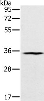 Western blot analysis of Human normal stomach tissue using TRIM40 antibody.