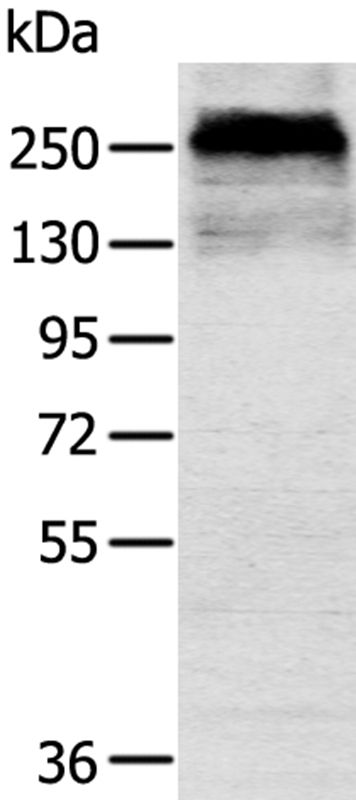 Western blot analysis of Mouse skin tissue using CSPG4 antibody.
