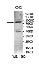 Western blot analysis of K562 lysate using NSUN7 antibody.