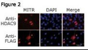 Confocal immunofluoroscence analysis of C2C12 cell using HDAC9 antibody (N-term)