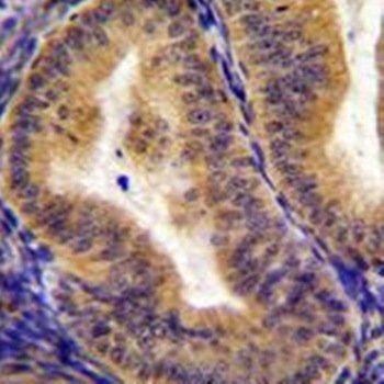 Immunohistochemical analysis of formalin-fixed paraffin embedded human uterus tissue using CD130 antibody (C-term)