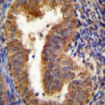 Immunohistochemical analysis of formalin-fixed paraffin embedded human uterus tissue using NIX antibody (Center)