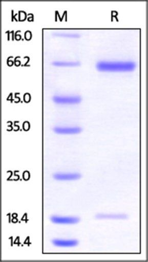 SDS-PAGE analysis of Hamster PCSK9 protein