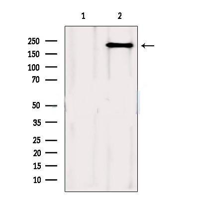 Western blot analysis of Mouse spleen using mTOR Antibody
