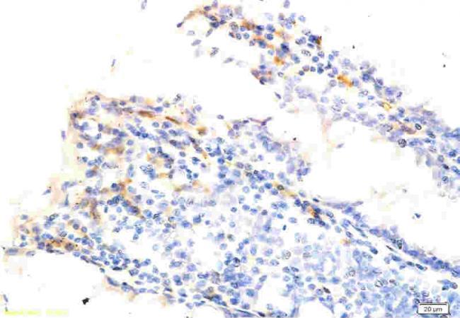 Immunohistochemical analysis of paraffin-embedded human rectum cancer using Osteopontin antibody.