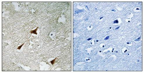 Immunohistochemical analysis of formalin-fixed and paraffin-embedded human brain tissue using p19 INK4d antibody