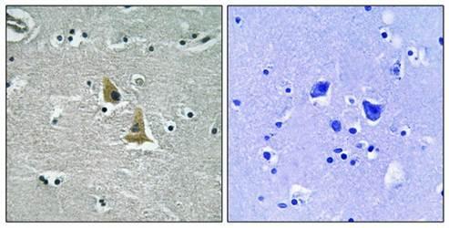 Immunohistochemical analysis of formalin-fixed and paraffin-embedded human brain tissue using p47 phox antibody