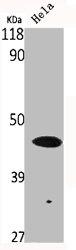 Western blot analysis of HELA cells using p53 antibody