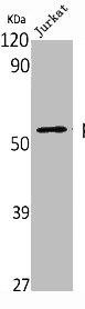 Western blot analysis of Jurkat cells using p53 antibody