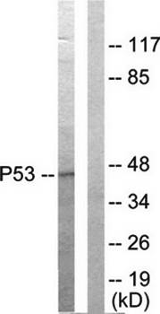 Western blot analysis of extracts from HepG2 cells using p53 antibody