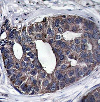 Immunohistochemical analysis of formalin-fixed and paraffin-embedded human breast carcinoma tissue using p62Dok(Ab-362) antibody