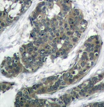Immunohistochemical analysis of formalin-fixed and paraffin-embedded human breast carcinoma tissue using p62Dok(Ab-398) antibody