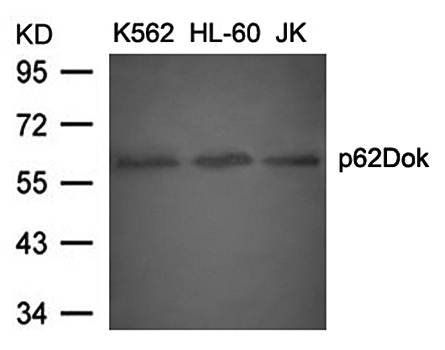 Western blot analysis of p62Dok(Ab-398) antibody in K562, HL-60 and JK cells lysate