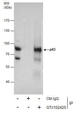 Immunoprecipitation analysis of A431 whole cell using p63 antibody