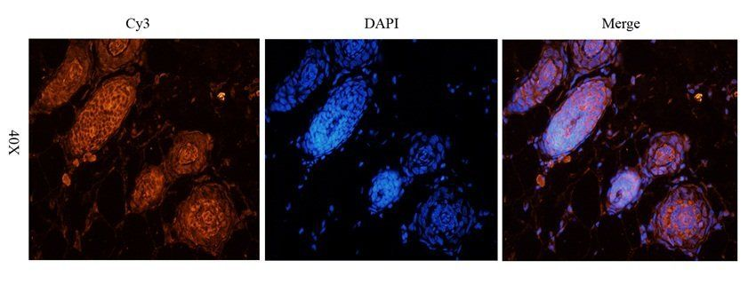 IF analysis of rat skin tissue using p63  antibody (2.5 ug/ml)