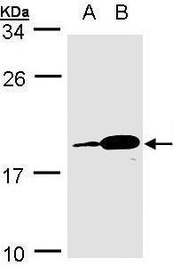 Western blot analysis of MOLT4(Lane 1), Raji(Lane 2) using PACAP antibody