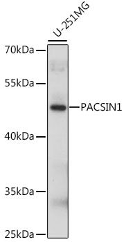 Western blot analysis of extracts of U-251MG cells lysates using PACSIN1 antibody
