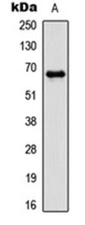 Western blot analysis of HCT116 (Lane1) whole cell using PAK1 (phospho-T212) antibody