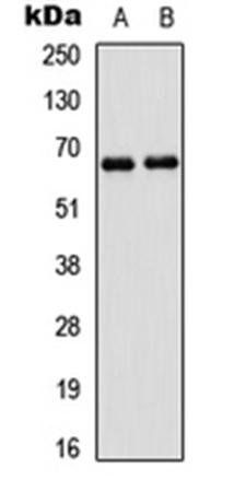 Western blot analysis of A431 (Lane1), HEK293T (Lane2) whole cell using PAK1 antibody