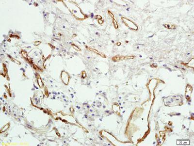 Immunohistochemical staining of human colon carcinoma tissue using PAR4 antibody.