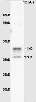 Western blot analysis of rat brain tissue using PAR4 antibody.