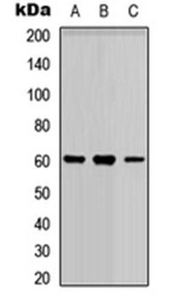 Western blot analysis of HEK293T (Lane1), Raw264.7 (Lane2), H9C2 (Lane3) whole cell using PARP3 antibody