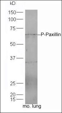 Western blot analysis of mouse lung tissue using Paxillin (phospho-Ser83) antibody.