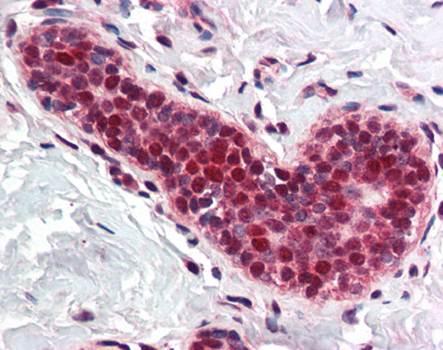 Immunohistochemical staining of paraffin embedded human breast tissue using PCNA antibody (primary antibody at 1:200)