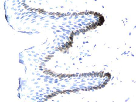 Immunohistochemical analysis of paraffin-embedded human tissue affected by verruca acuminata using PDEF antibody