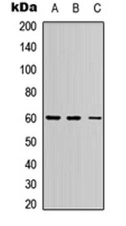 Western blot analysis of HEK293T (Lane1), Raw264.7 (Lane2), PC12 (Lane3) whole cell using PE2 antibody