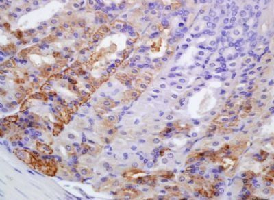 Immunohistochemical analysis of formalin-fixed paraffin embedded mouse stomach tissue using PERK antibody (dilution at 1:200)