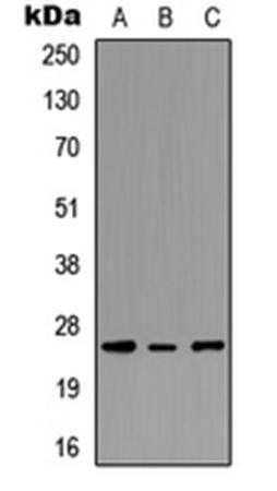 Western blot analysis of MCF7 (Lane1), NS-1 (Lane2), PC12 (Lane3) whole cell using PEX11G antibody