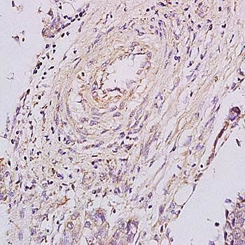 Immunohistochemical analysis of formalin-fixed and paraffin embedded human esophageal carcinoma tissue (dilution at:1:200) using PGRN antibody