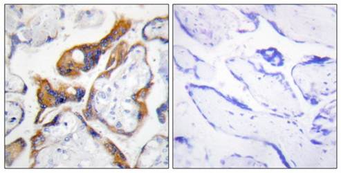 Immunohistochemical analysis of formalin-fixed and paraffin-embedded human placenta tissue using PHLA2 antibody